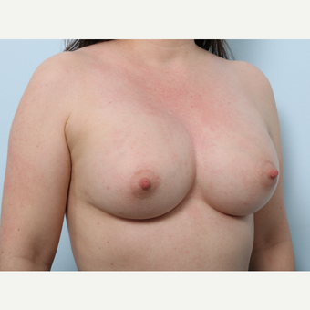 Breast Augmentation after 3345411