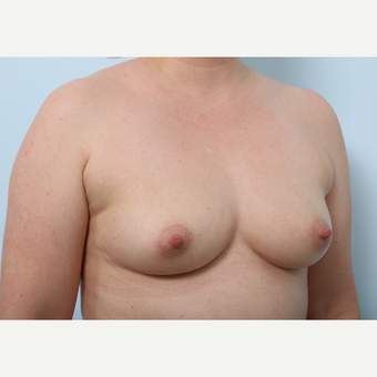 Breast Augmentation before 3345411