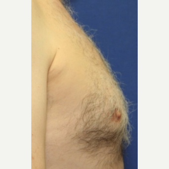 51 year old man Male Breast Reduction before 3065206