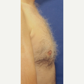 51 year old man Male Breast Reduction after 3065206
