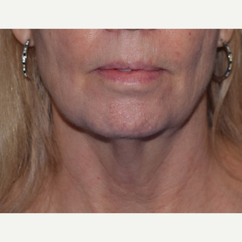 55-64 year old woman treated with laser-assisted Neck Lift before 3638972
