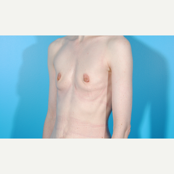 35-44 year old woman treated with Breast Augmentation before 3763123