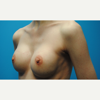 35-44 year old woman treated with Breast Augmentation after 3763123