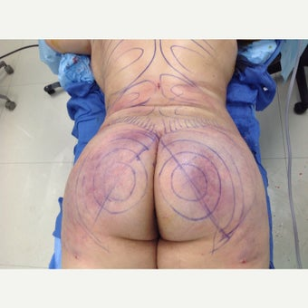 25-34 year old BMI 36 woman treated with Brazilian Butt Lift