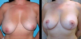 41 Year Old Woman - Breast Lift & Asymmetry Correction before 1086294