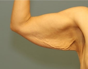 35-44 year old woman requesting Arm Lift before 3031280