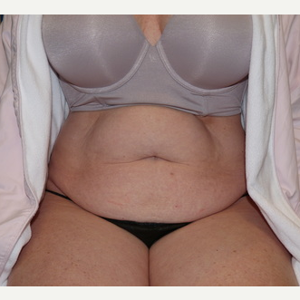 Tummy Tuck before 3807182
