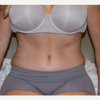Tummy Tuck after 3807182