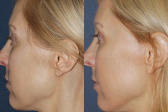 Before & After Fraxel 806249