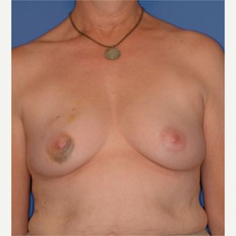 45-54 year old woman treated with Breast Reconstruction before 3619238