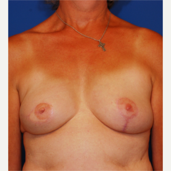 45-54 year old woman treated with Breast Reconstruction after 3619238