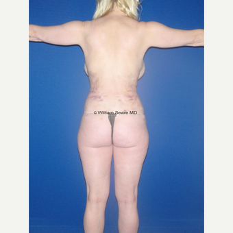35-44 year old woman treated with Liposuction after 3771518