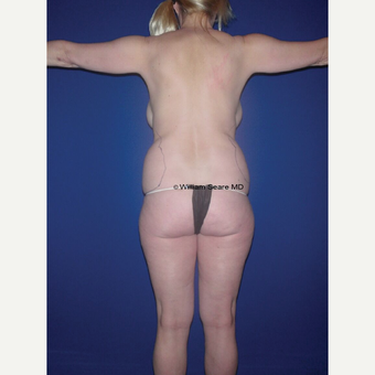 35-44 year old woman treated with Liposuction before 3771518
