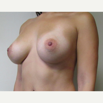 30 year old woman underwent Breast Augmentation with 380 cc saline Breast Implants after 3467984