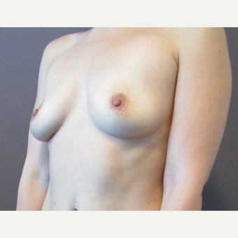 30 year old woman underwent Breast Augmentation with 380 cc saline Breast Implants before 3467984