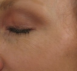 Crows feet after a single 1540 Lux Fractional Laser Treatment