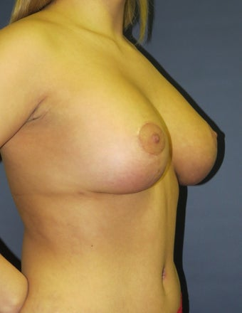 Breast Lift with Implants after 1236305