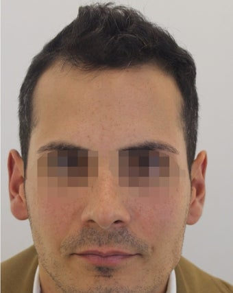18-24 year old man treated with Hair Transplant before 2005389