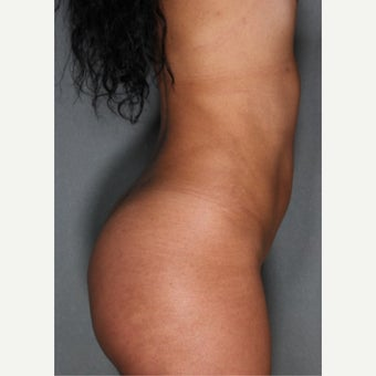 24 year old woman treated with Fat Transfer to Buttocks, SmartLipo to Abdomen & Love Handles after 1811406