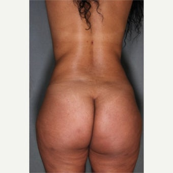 24 year old woman treated with Fat Transfer to Buttocks, SmartLipo to Abdomen & Love Handles 1811406