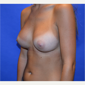 25-34 year old woman treated with Breast Augmentation after 3579899