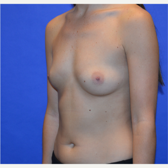 25-34 year old woman treated with Breast Augmentation before 3579899