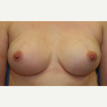 60 year old woman with a bilateral nipple-sparring mastectomy followed by implant reconstruction after 3042413