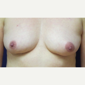 60 year old woman with a bilateral nipple-sparring mastectomy followed by implant reconstruction before 3042413