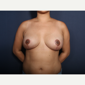 25-34 year old woman treated with Breast Reduction after 3372393