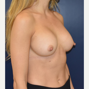 25-34 year old woman treated with Breast Implants after 3711184