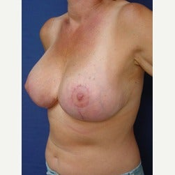 45-54 year old woman treated with Breast Implant Revision after 2034712