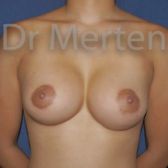 Tuberous breast treated with Breast Lift with Implants after 3595347