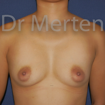 Tuberous breast treated with Breast Lift with Implants before 3595347