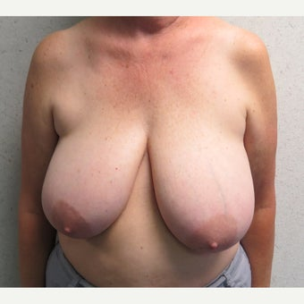 55-64 year old woman treated with Breast Reduction before 2384527