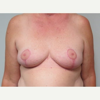 55-64 year old woman treated with Breast Reduction after 2384527