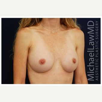 25-34 year old woman treated with Inspira Breast Implants after 1860179