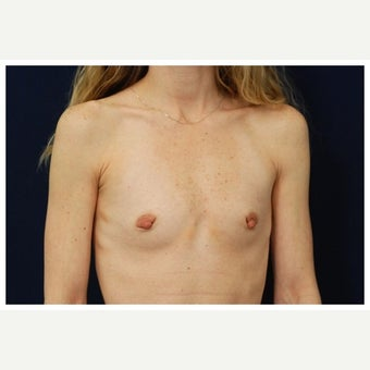 25-34 year old woman treated with Inspira Breast Implants before 1860179