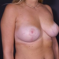25-34 year old woman treated with Breast Lift after 3546117