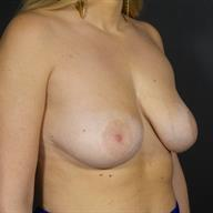 25-34 year old woman treated with Breast Lift before 3546117