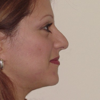 35-44 year old woman treated with Rhinoplasty before 3506409