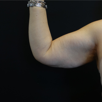 45-54 year old woman treated with Arm Lift before 3730397