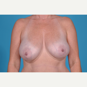 41 year old woman treated with Breast Lift before 3097749