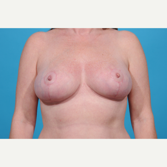 41 year old woman treated with Breast Lift after 3097749