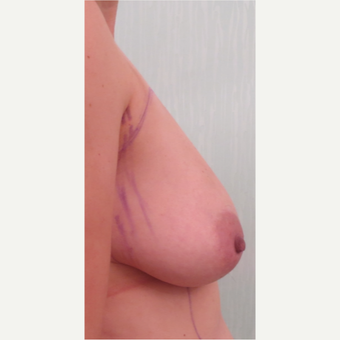 35-44 year old woman treated with Breast Fat Transfer before 3073382