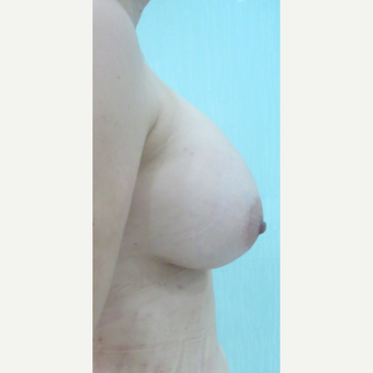 35-44 year old woman treated with Breast Fat Transfer after 3073382