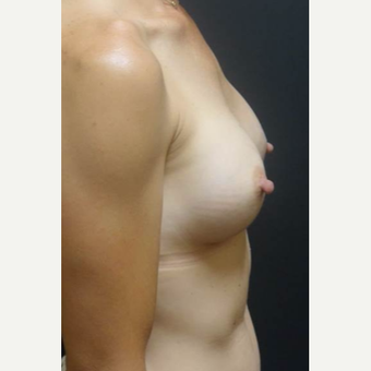 35-44 year old woman treated with Breast Augmentation after 3460351