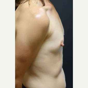 35-44 year old woman treated with Breast Augmentation before 3460351