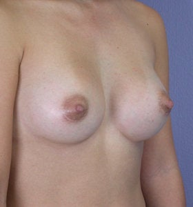 Breast Augmentation after 281445