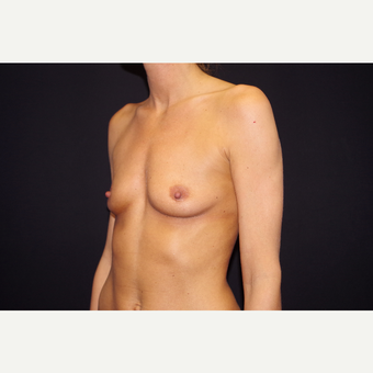 25-34 year old woman treated with Breast Augmentation before 3123721