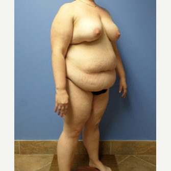 35-44 year old woman treated with Weight Loss after 3370130